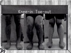 knee in toe out 2